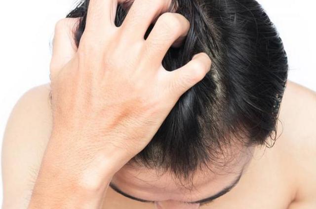 去除頭皮出油長痤瘡的方法